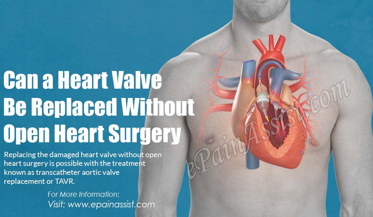 Can A Heart Valve Be Replaced Without Open Heart Surgery