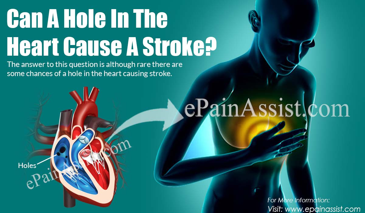 Can A Hole In The Heart Cause A Stroke?