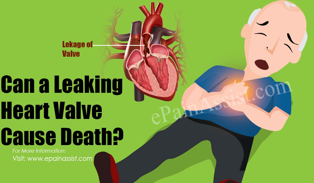 Can a Leaking Heart Valve Cause Death?
