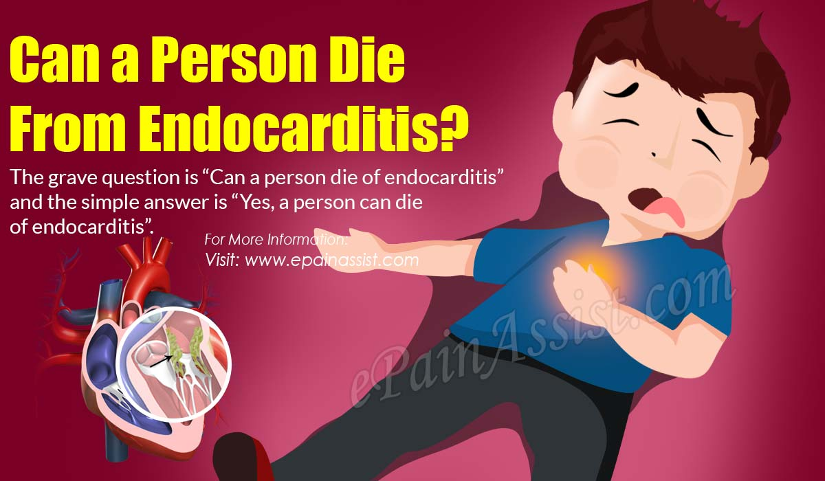 Can a Person Die From Endocarditis?