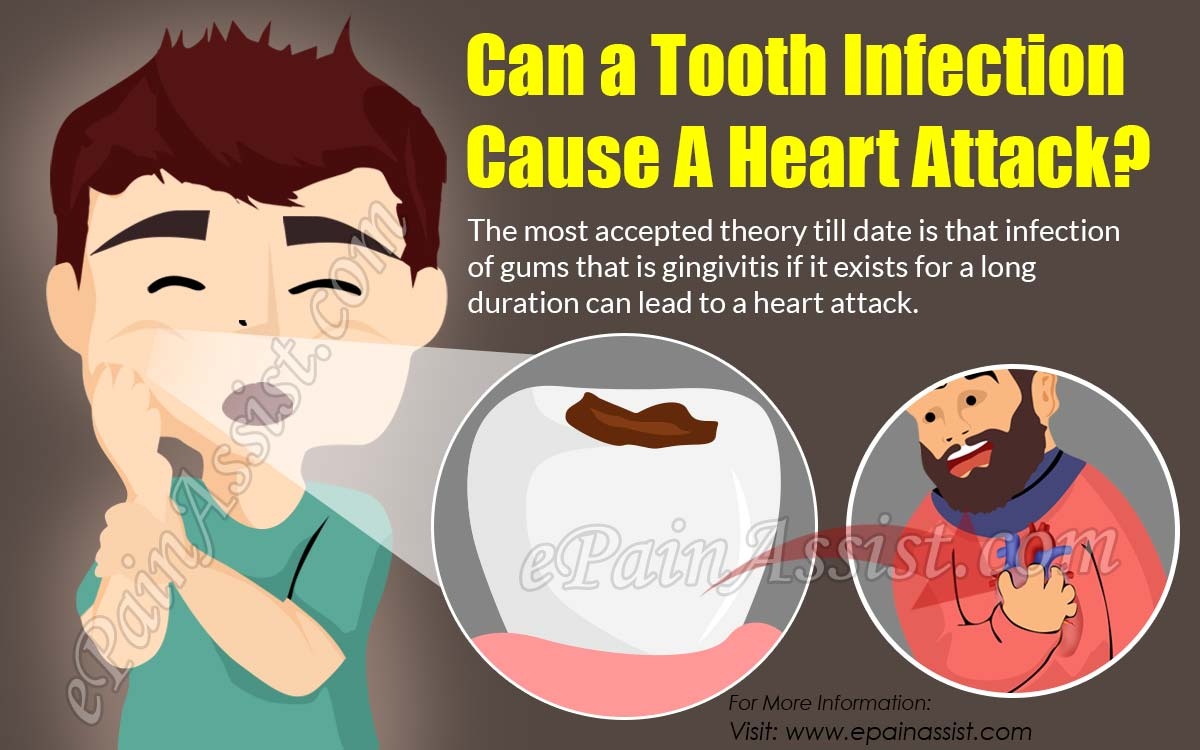 Can a Tooth Infection Cause A Heart Attack?
