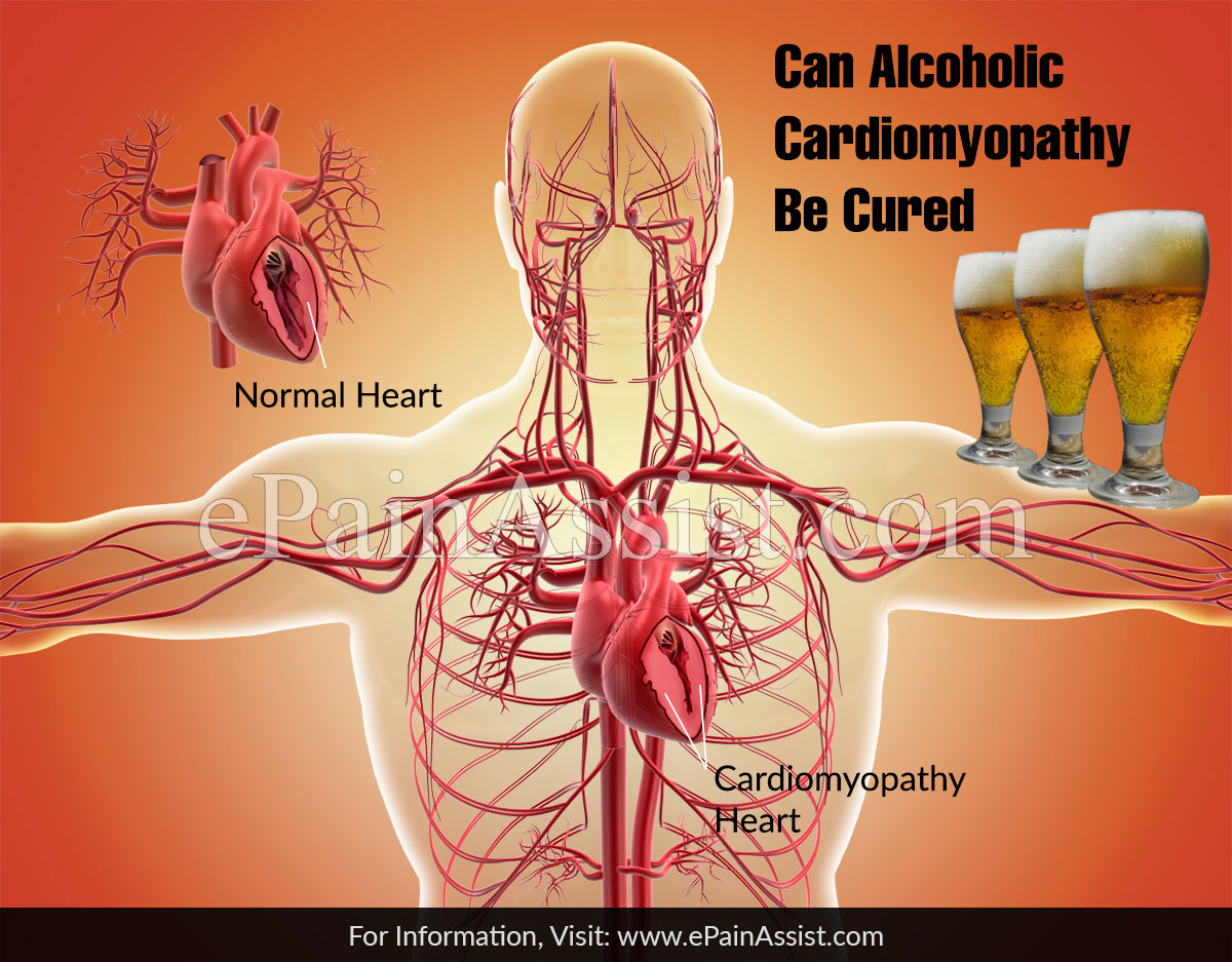 Can Alcoholic Cardiomyopathy Be Cured?