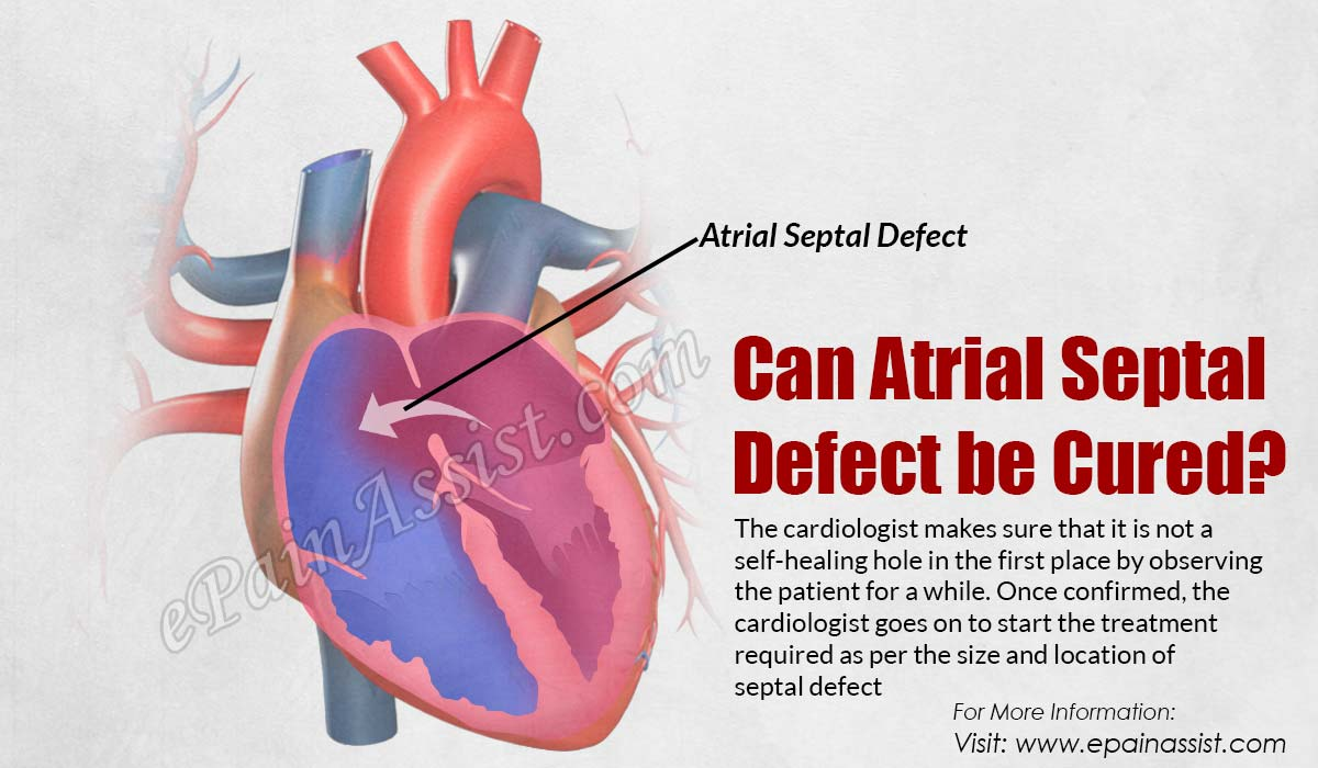Delirium, opinion adult atrial defect septal remarkable, rather
