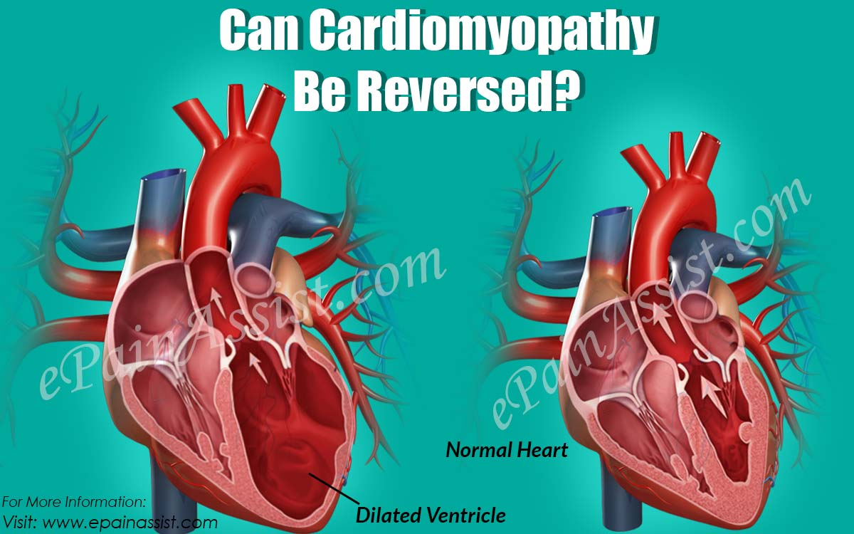 Can Cardiomyopathy Be Reversed?