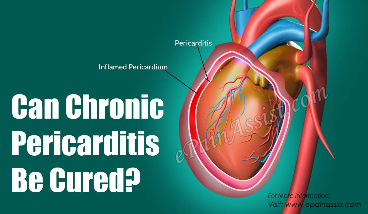 Can Chronic Pericarditis Be Cured?