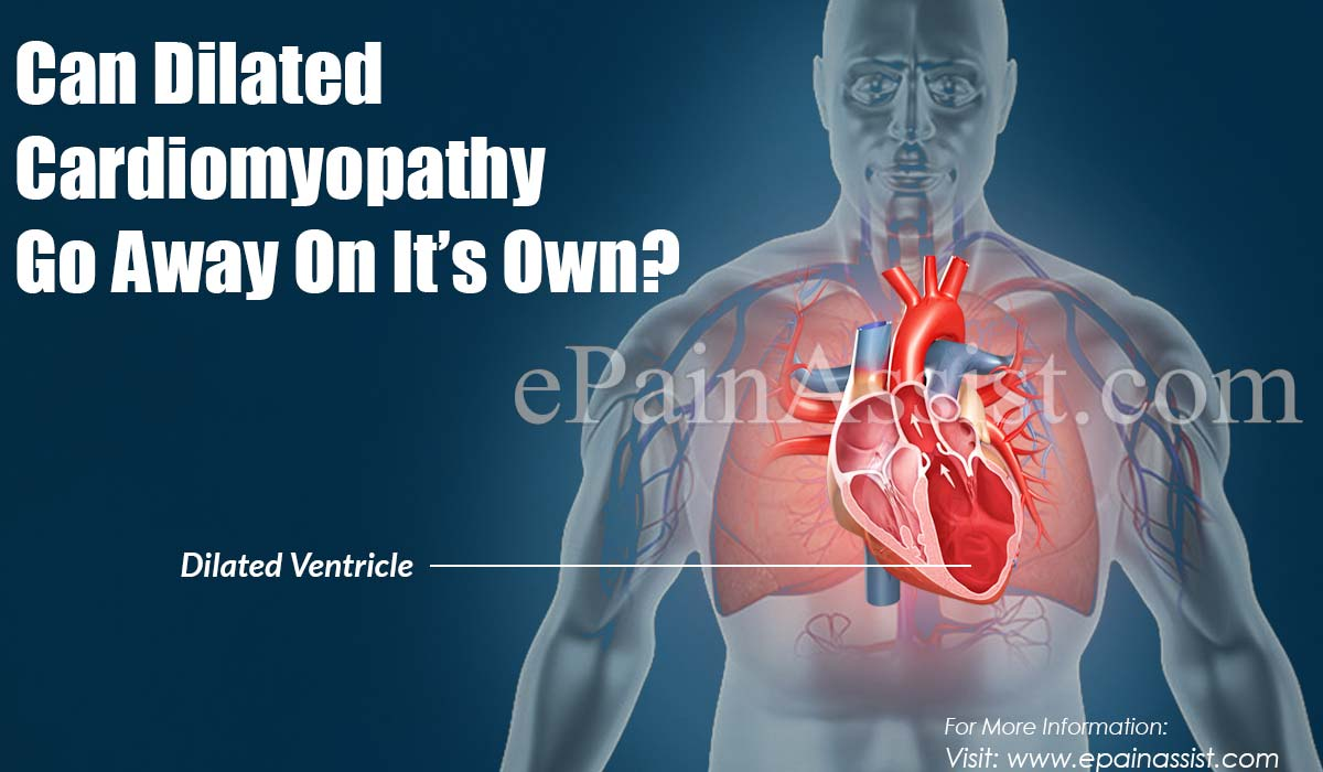 Can Dilated Cardiomyopathy Go Away On It's Own?