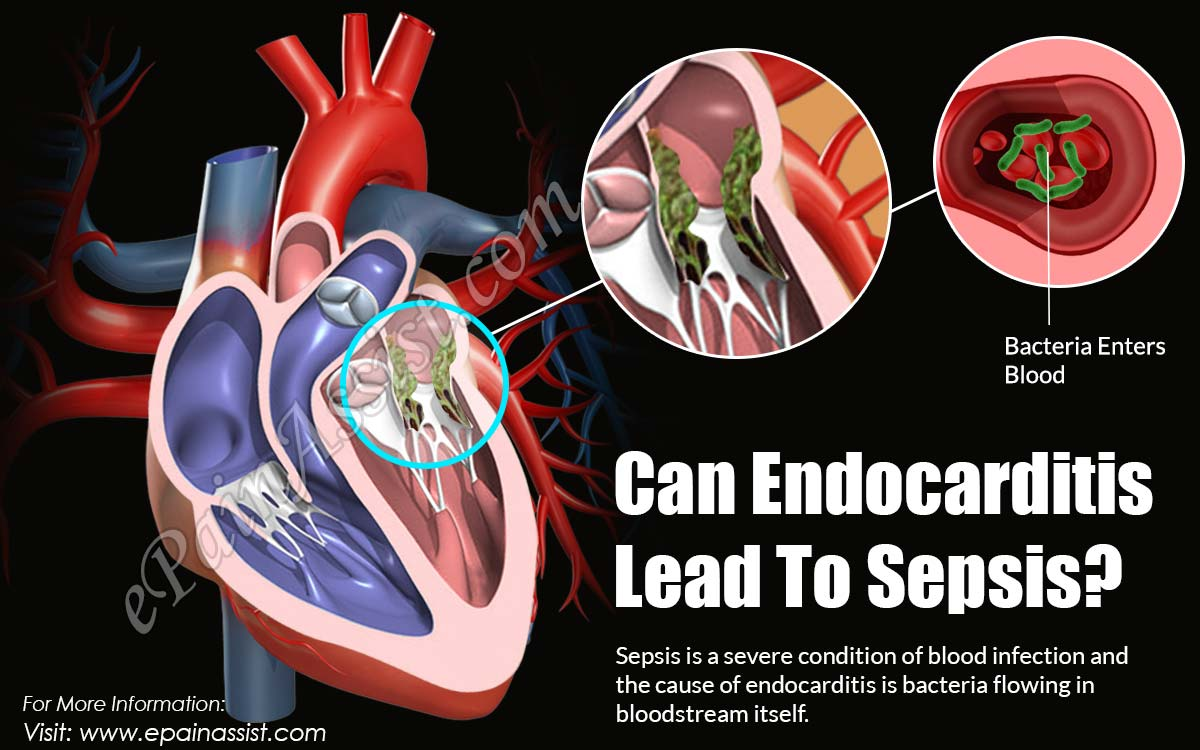 Can Endocarditis Lead To Sepsis?