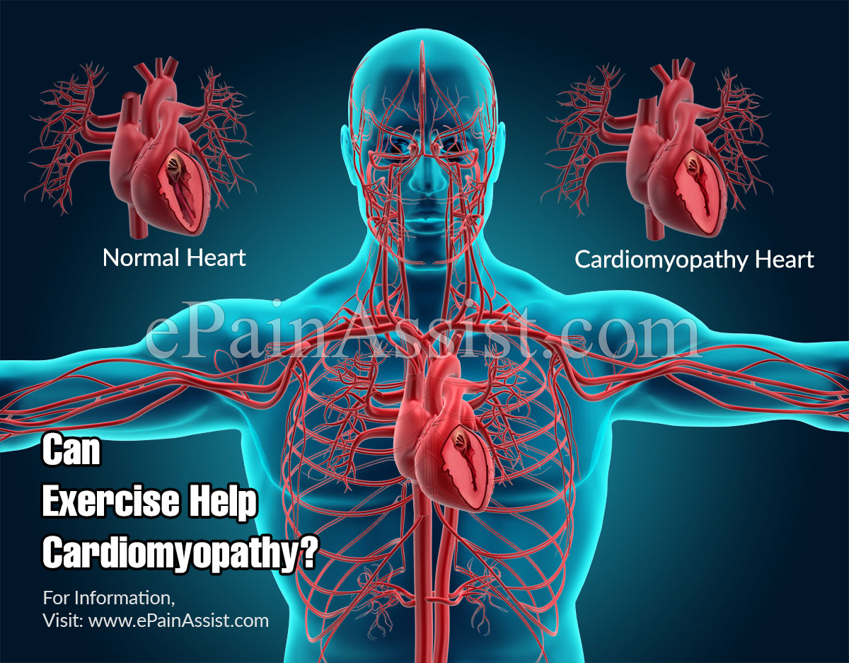 Can Exercise Help Cardiomyopathy?