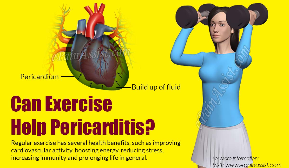 Can Exercise Help Pericarditis?