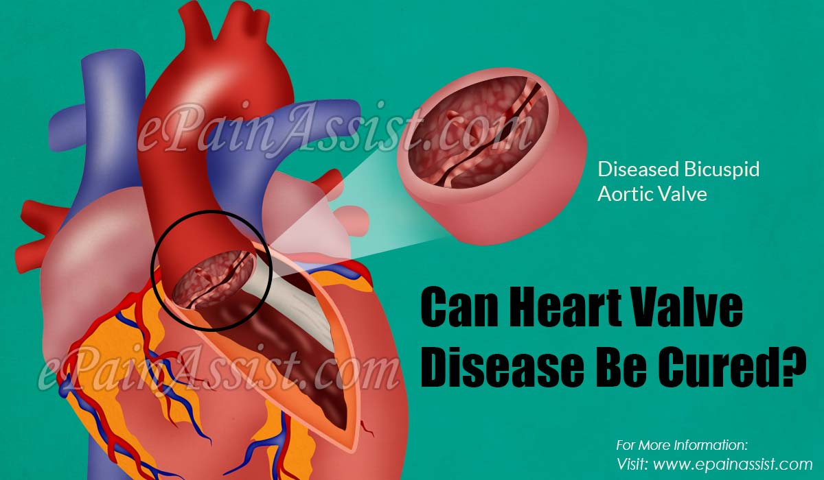 Can Heart Valve Disease Be Cured?