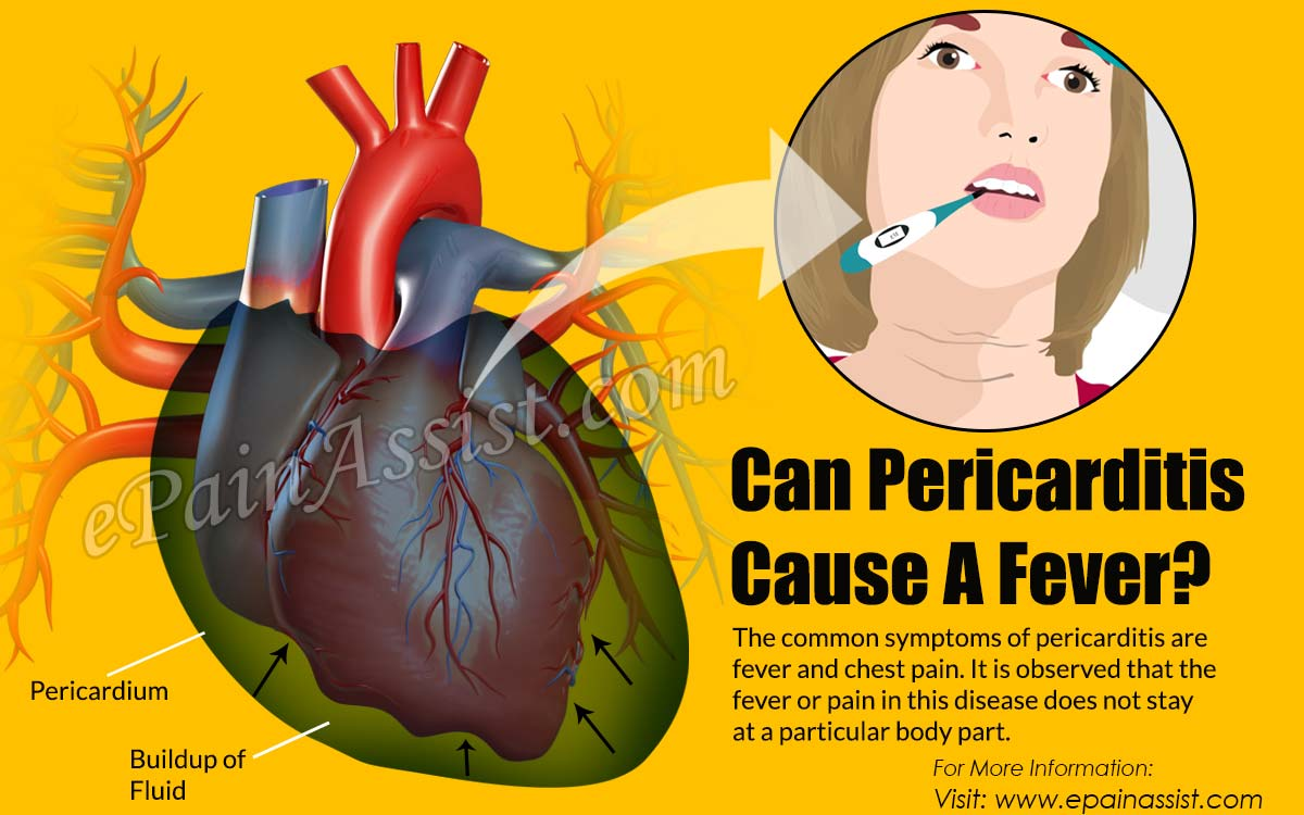 Can Pericarditis Cause A Fever?