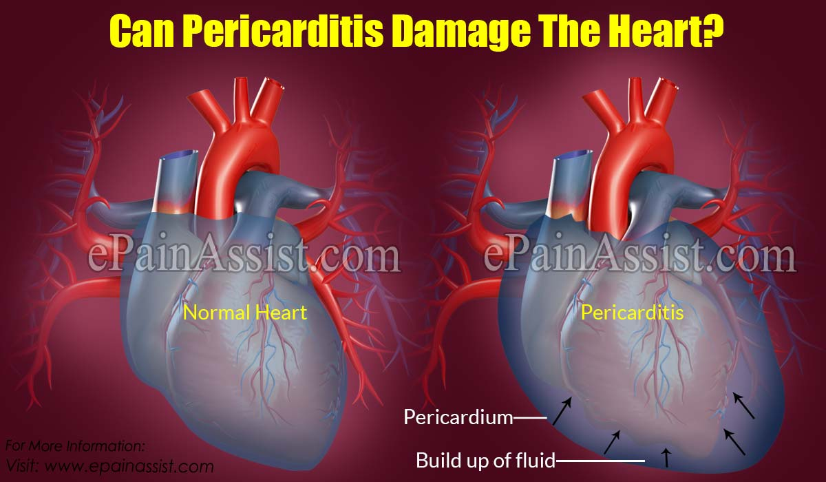 Can Pericarditis Damage The Heart?