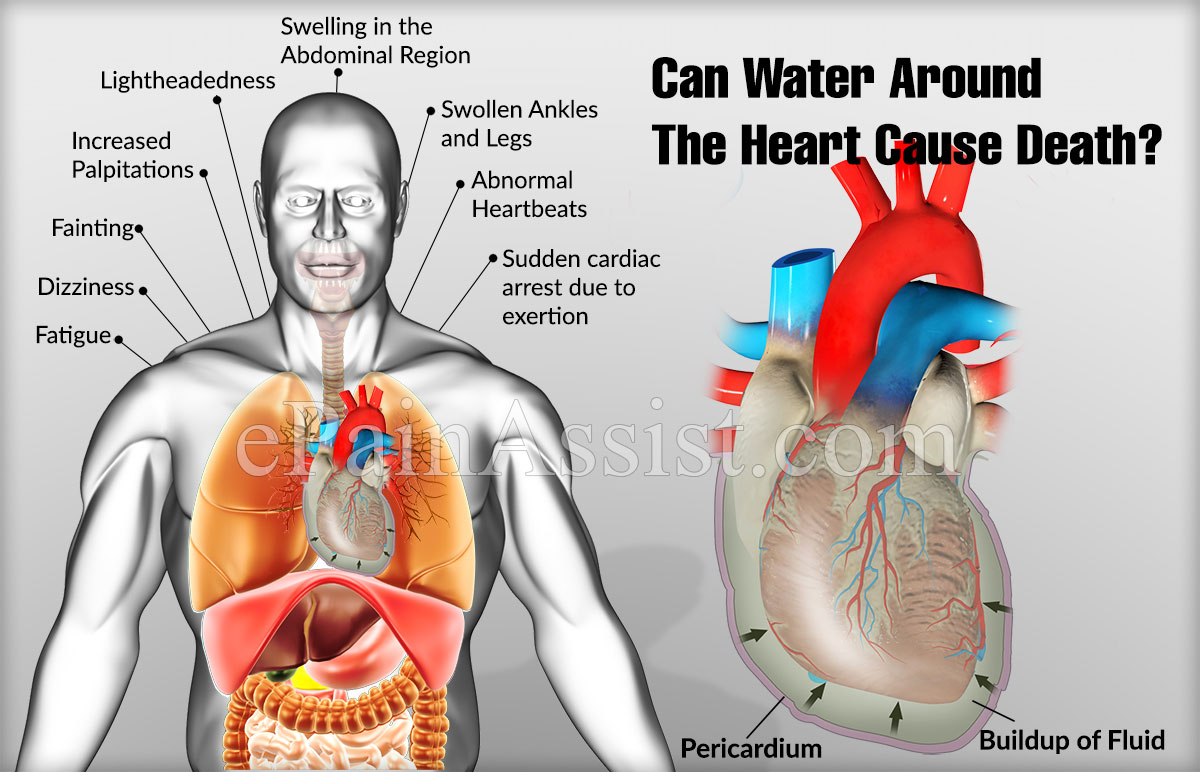 Can Water Around The Heart Cause Death?