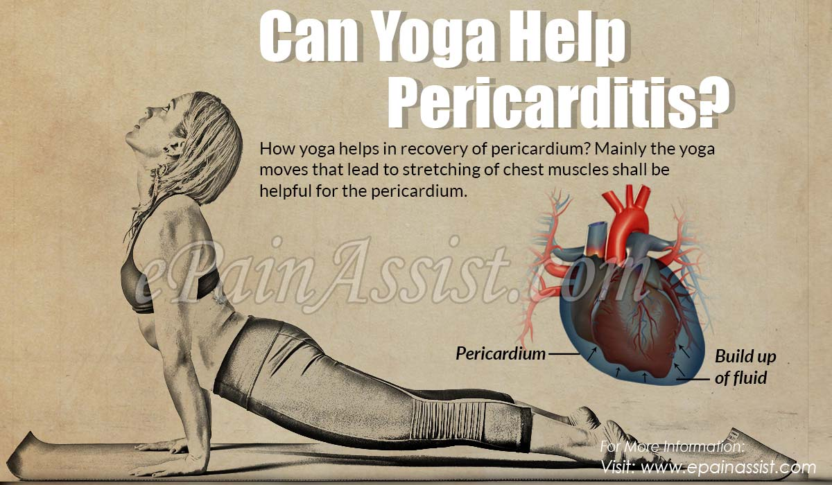 Can Yoga Help Pericarditis?