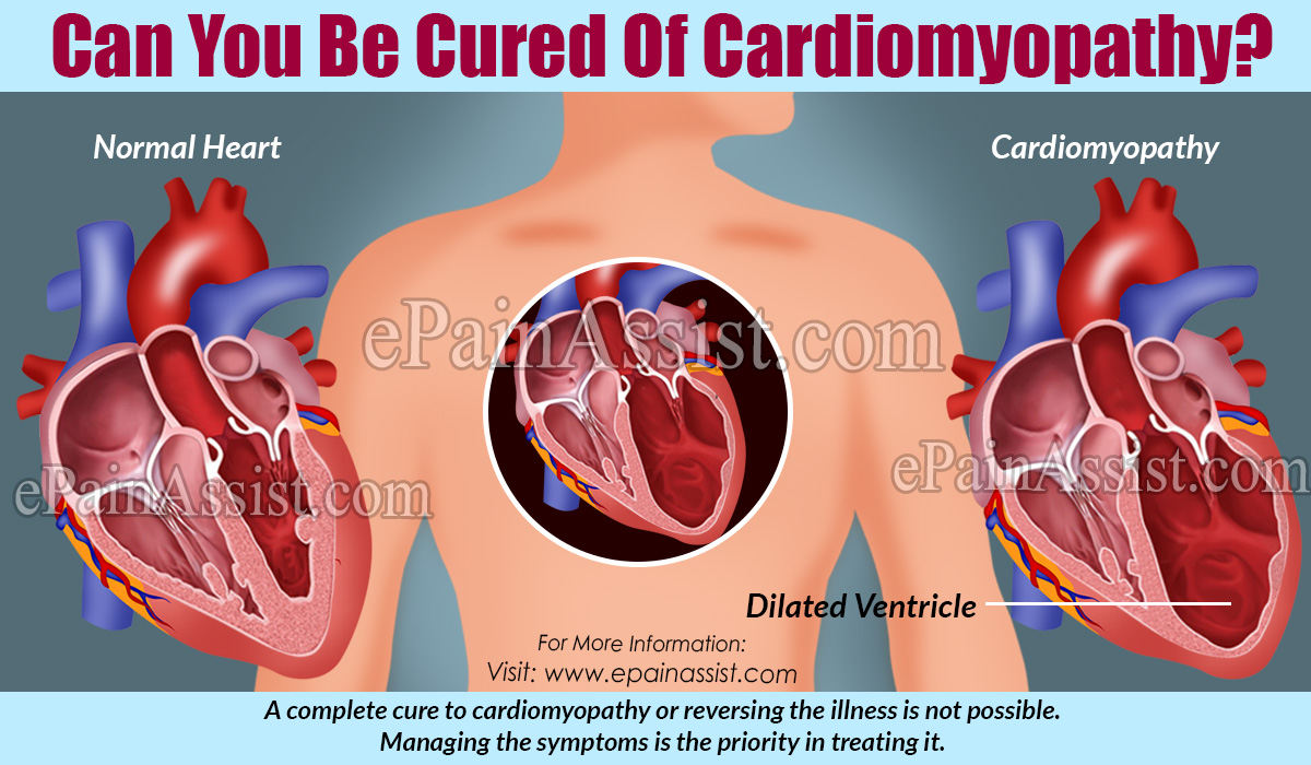 Can You Be Cured Of Cardiomyopathy?