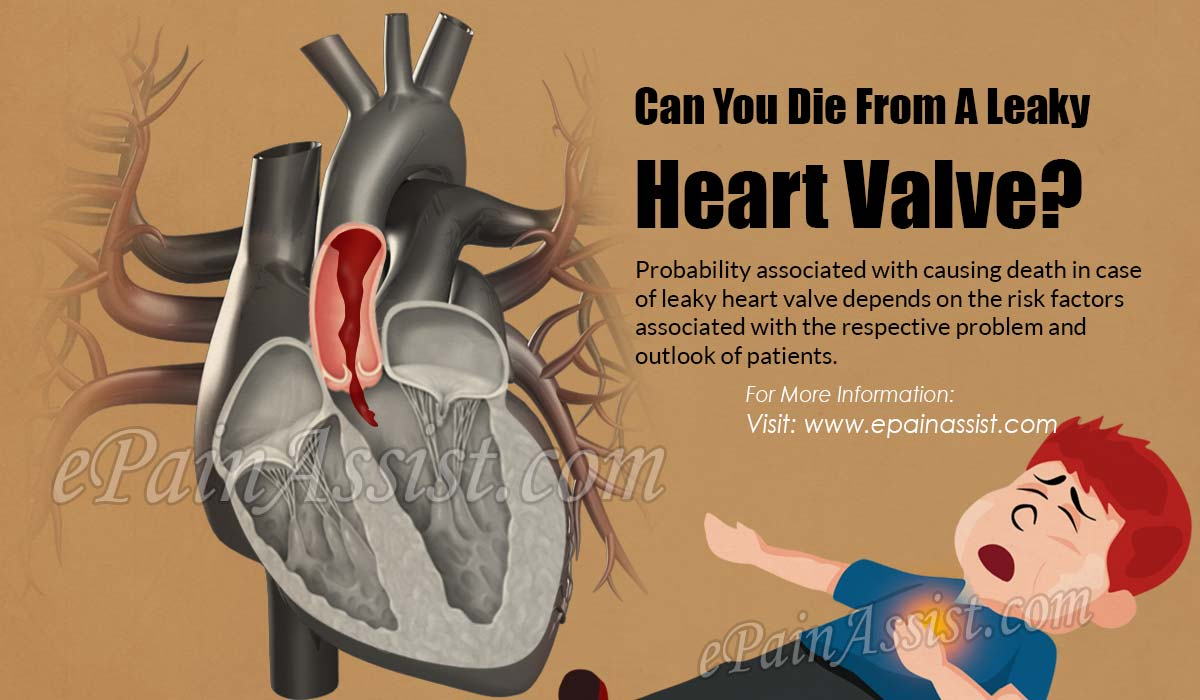 Can You Die From A Leaky Heart Valve?