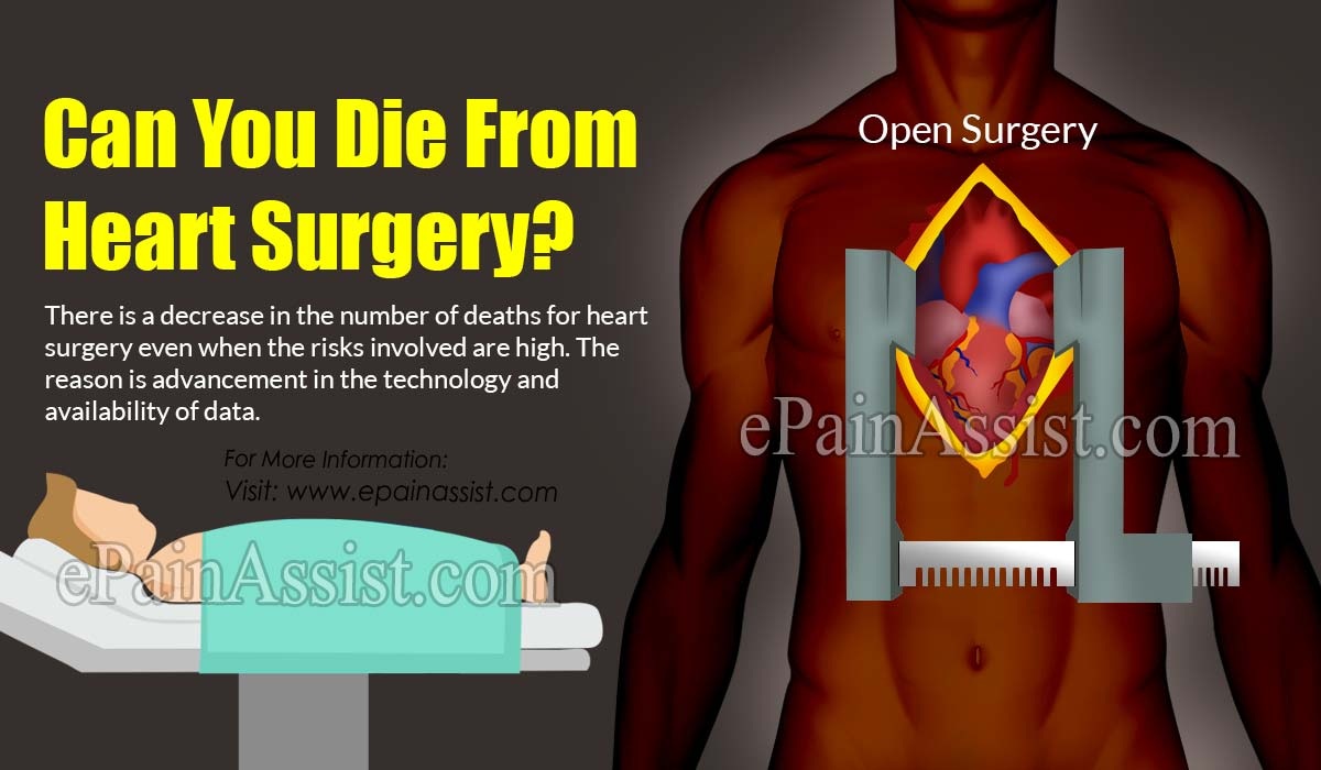 Can You Die From Heart Surgery?