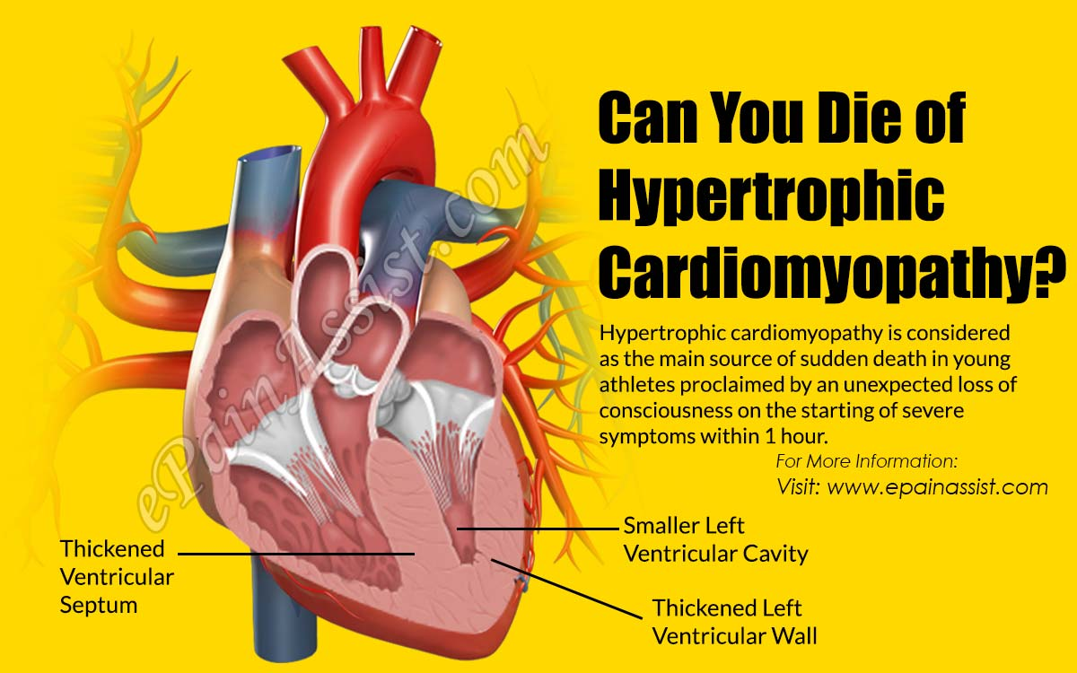Can You Die of Hypertrophic Cardiomyopathy?