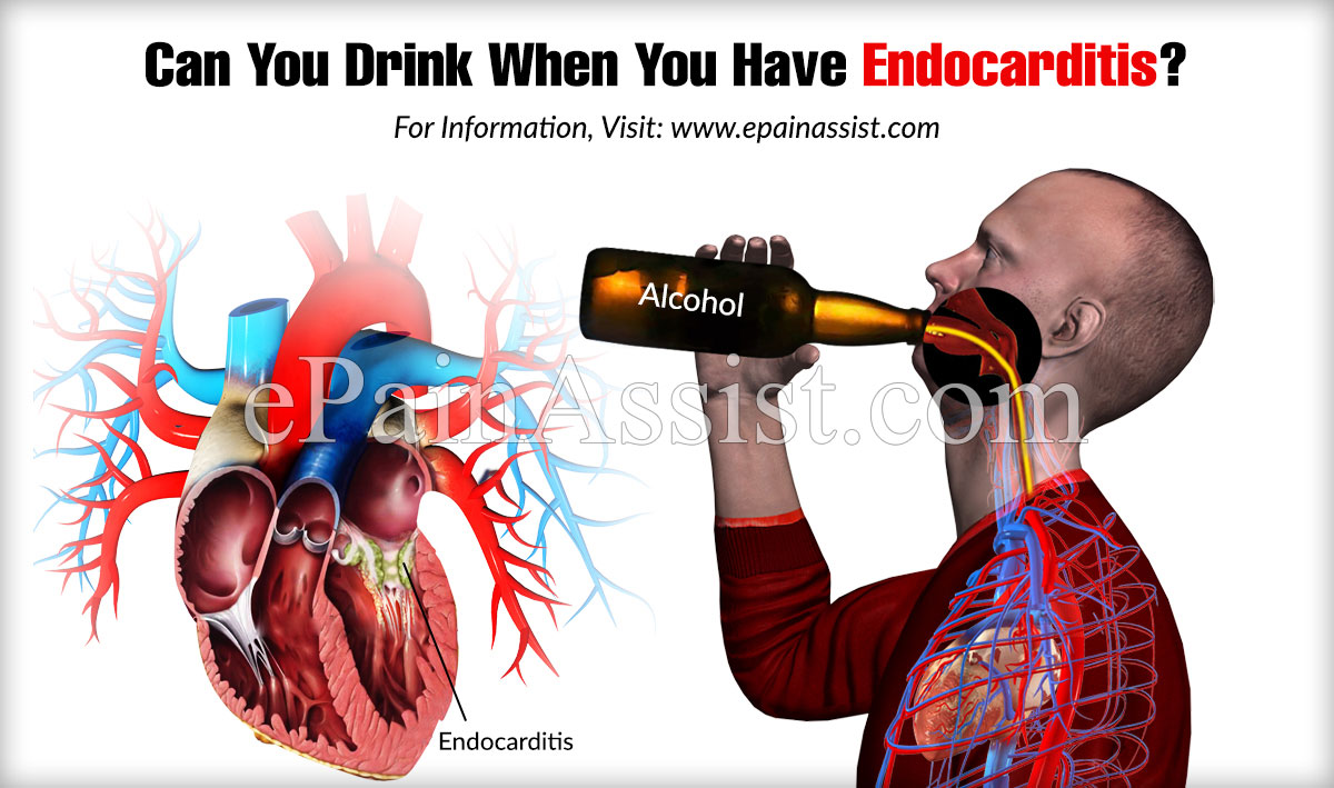Can You Drink When You Have Endocarditis?