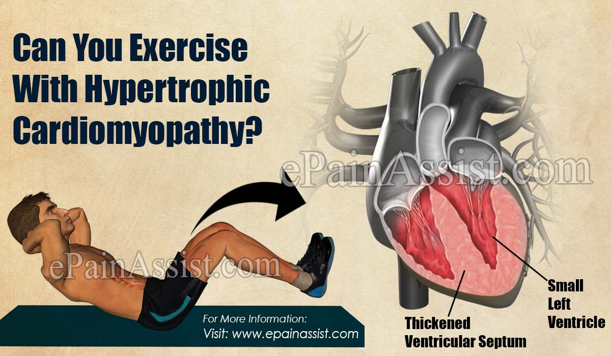Can You Exercise With Hypertrophic Cardiomyopathy?