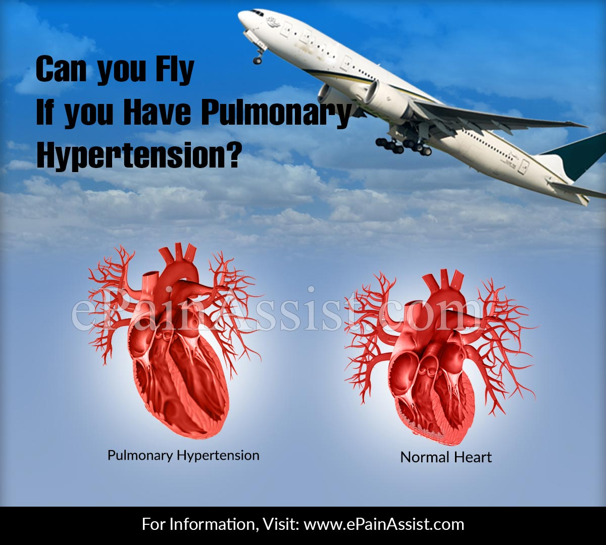 Can You Fly If You Have Pulmonary Hypertension?