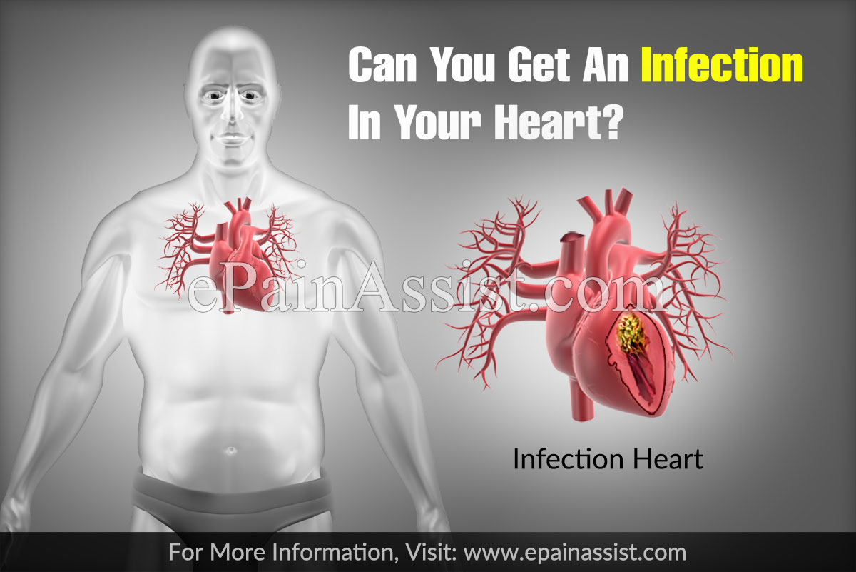 Can You Get An Infection In Your Heart?