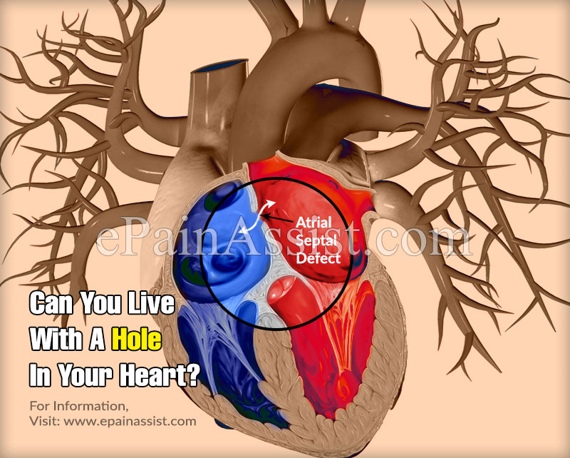 Can You Live With A Hole In Your Heart?