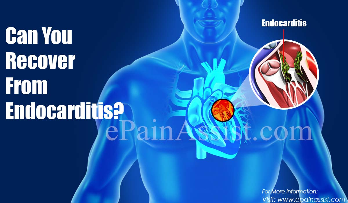 Can You Recover From Endocarditis?