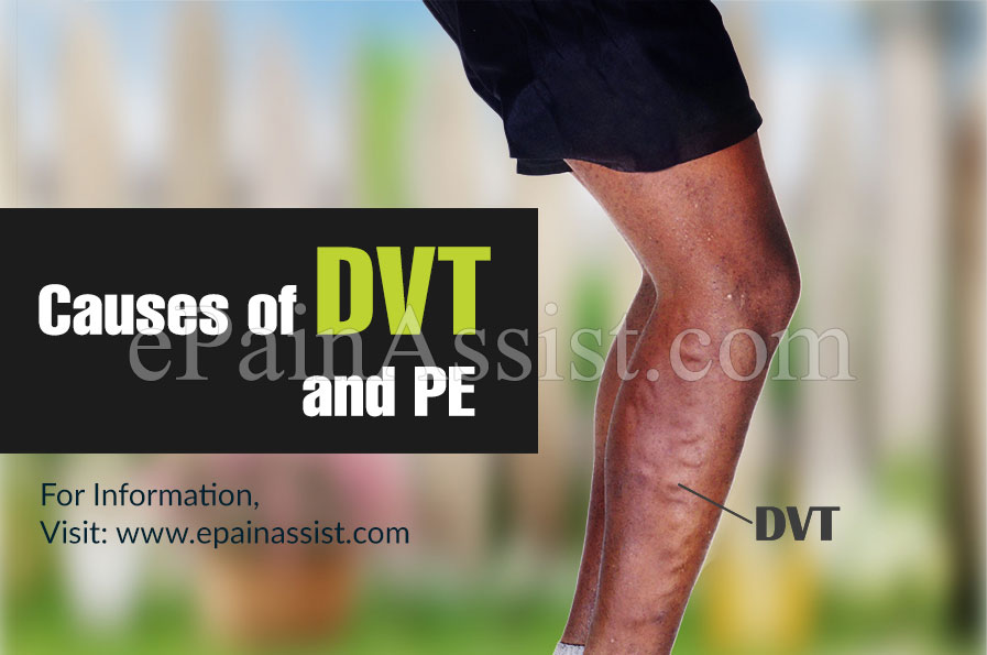 Causes of DVT and PE & its Symptoms, Diagnosis