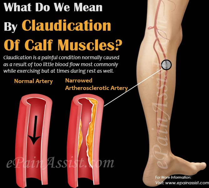 What Do We Mean By Claudication Of Calf Muscles?
