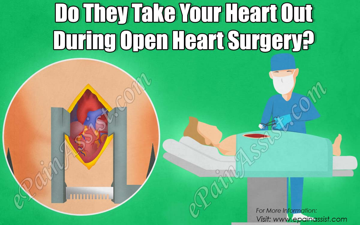 Do They Take Your Heart Out During Open Heart Surgery?