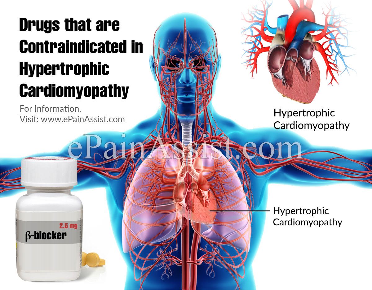 Drugs that are Contraindicated in Hypertrophic Cardiomyopathy
