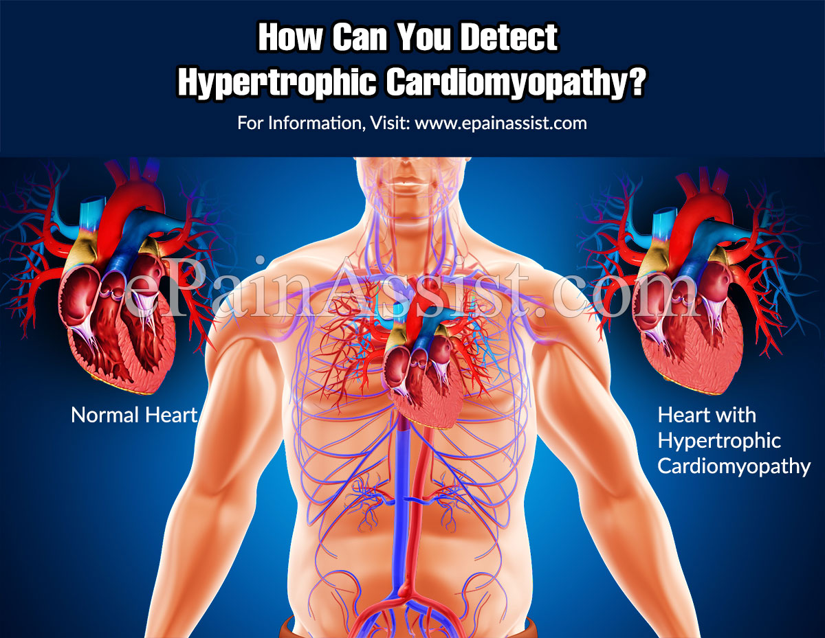 How Can You Detect Hypertrophic Cardiomyopathy?