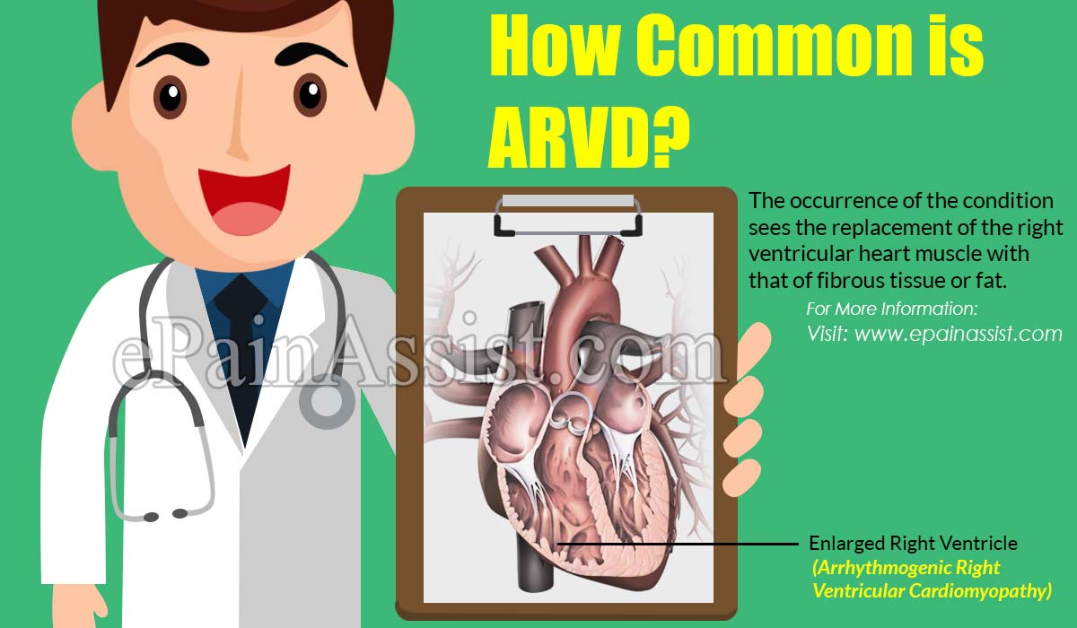 How Common is ARVD?