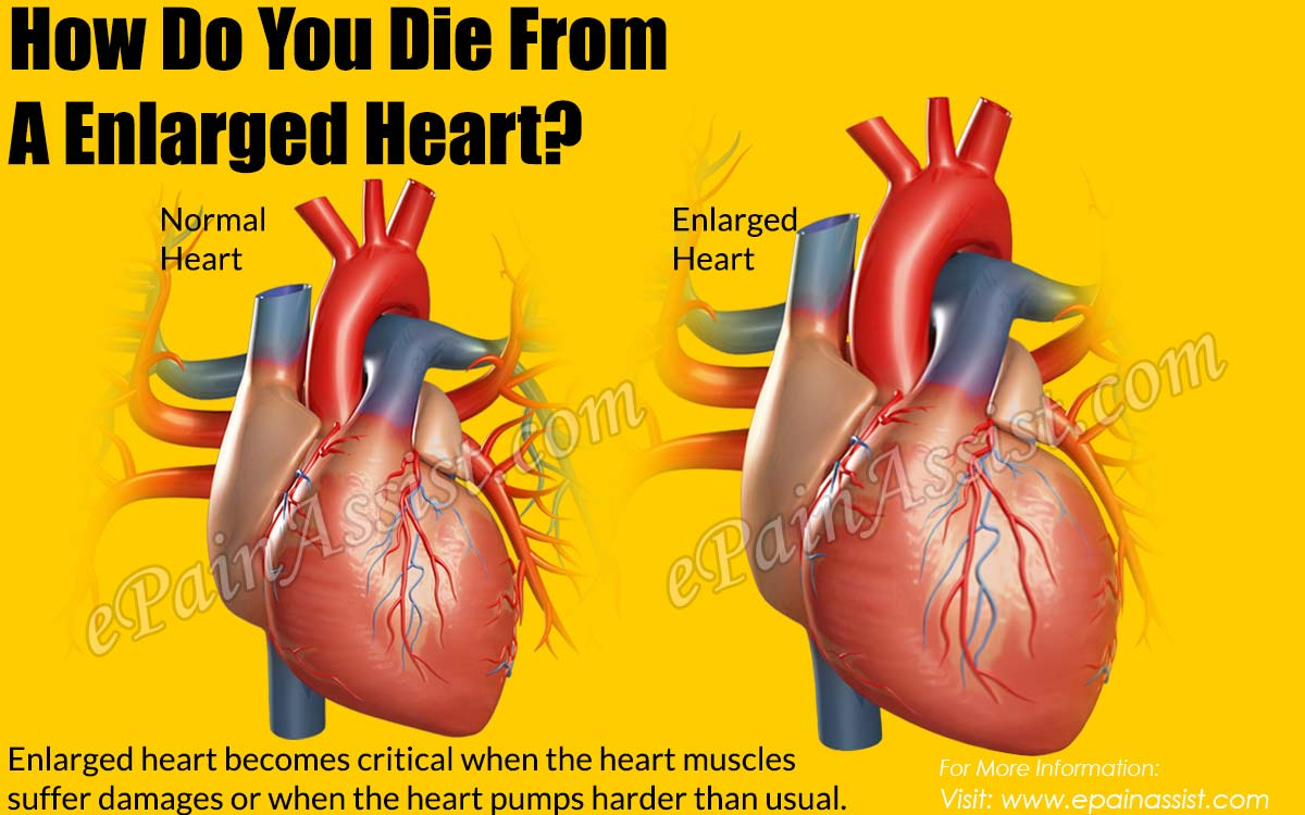 How Do You Die From An Enlarged Heart?