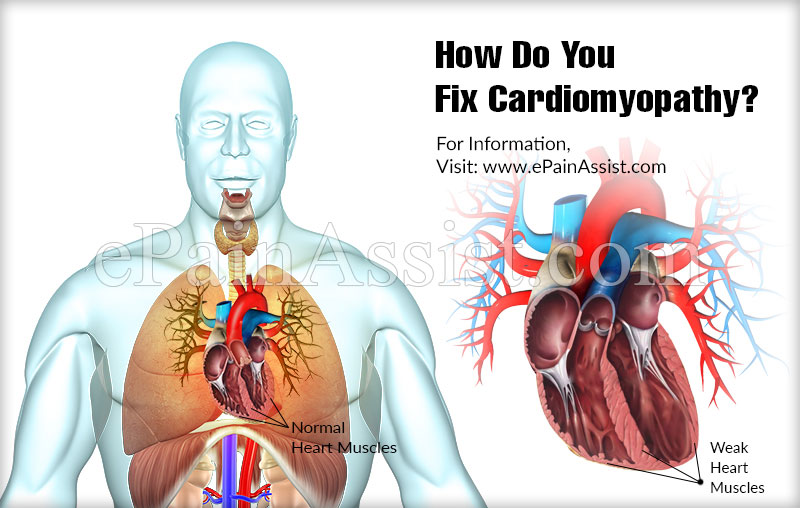 How Do You Fix Cardiomyopathy?