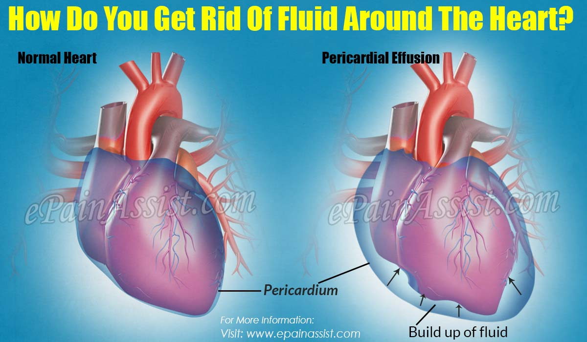 how do you get rid of fluid around the heart