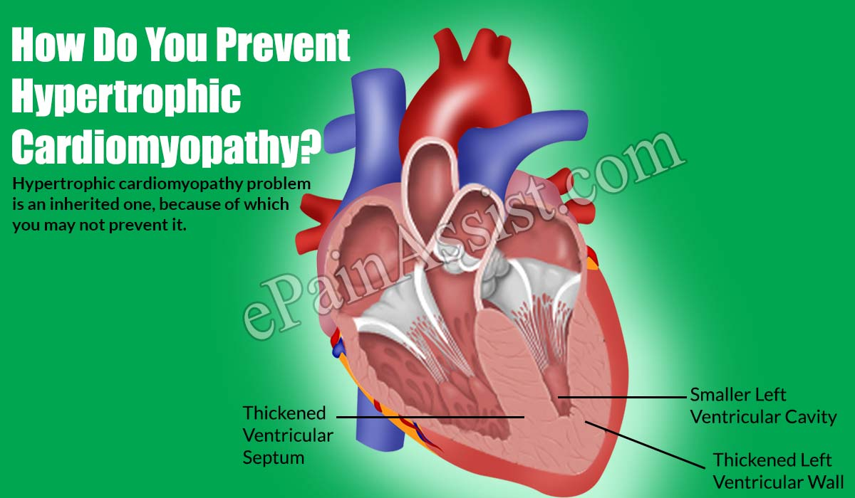 How Do You Prevent Hypertrophic Cardiomyopathy?