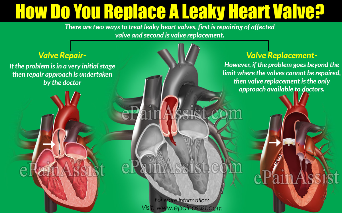 How Do You Replace A Leaky Heart Valve?