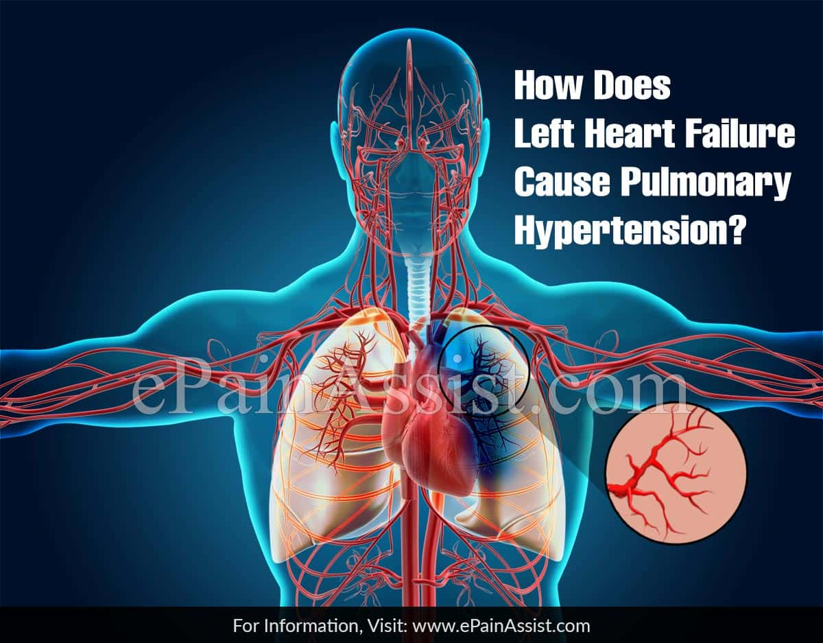 How Does Left Heart Failure Cause Pulmonary Hypertension?