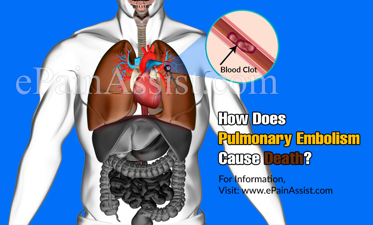 How Does Pulmonary Embolism Cause Death?