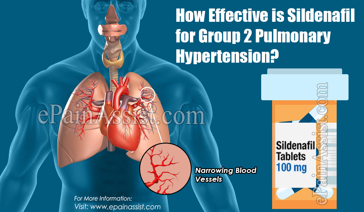 How Effective is Sildenafil for Group 2 Pulmonary Hypertension?