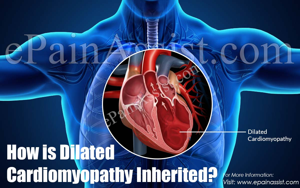 How is Dilated Cardiomyopathy Inherited?