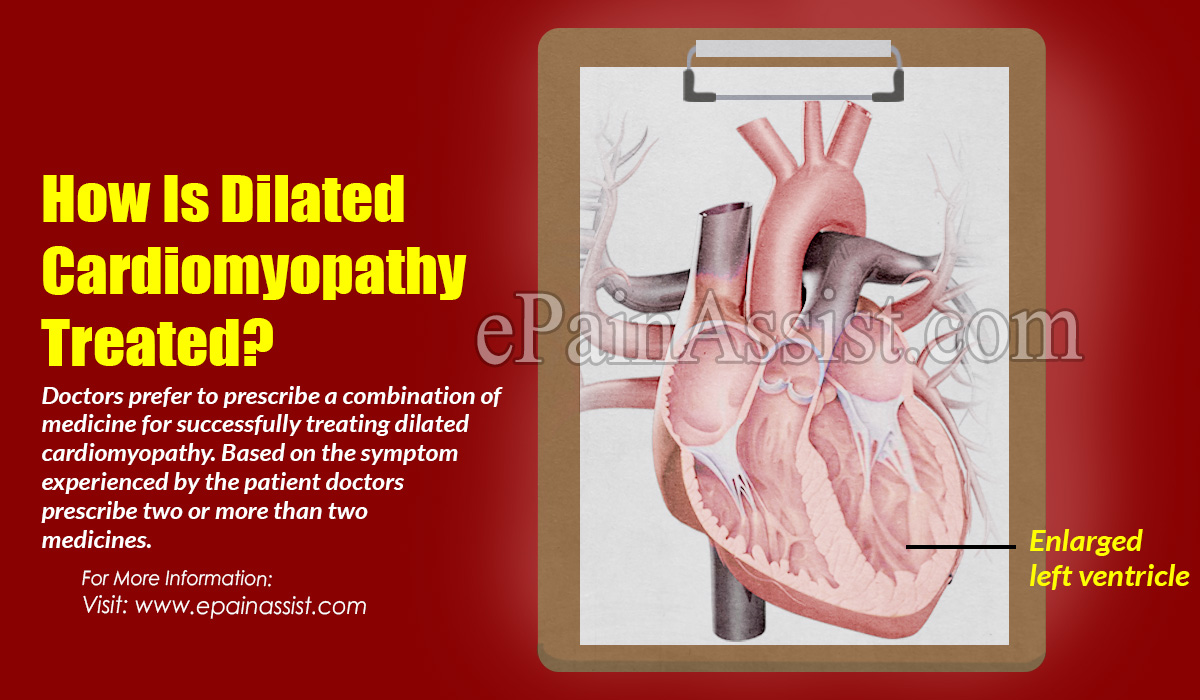 How Is Dilated Cardiomyopathy Treated?