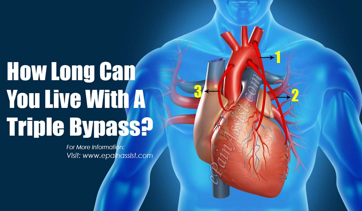 How Long Can You Live With A Triple Bypass