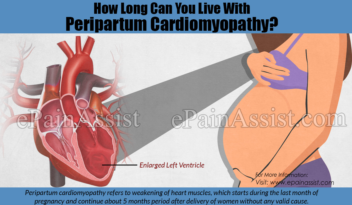 How Long Can You Live With Peripartum Cardiomyopathy?