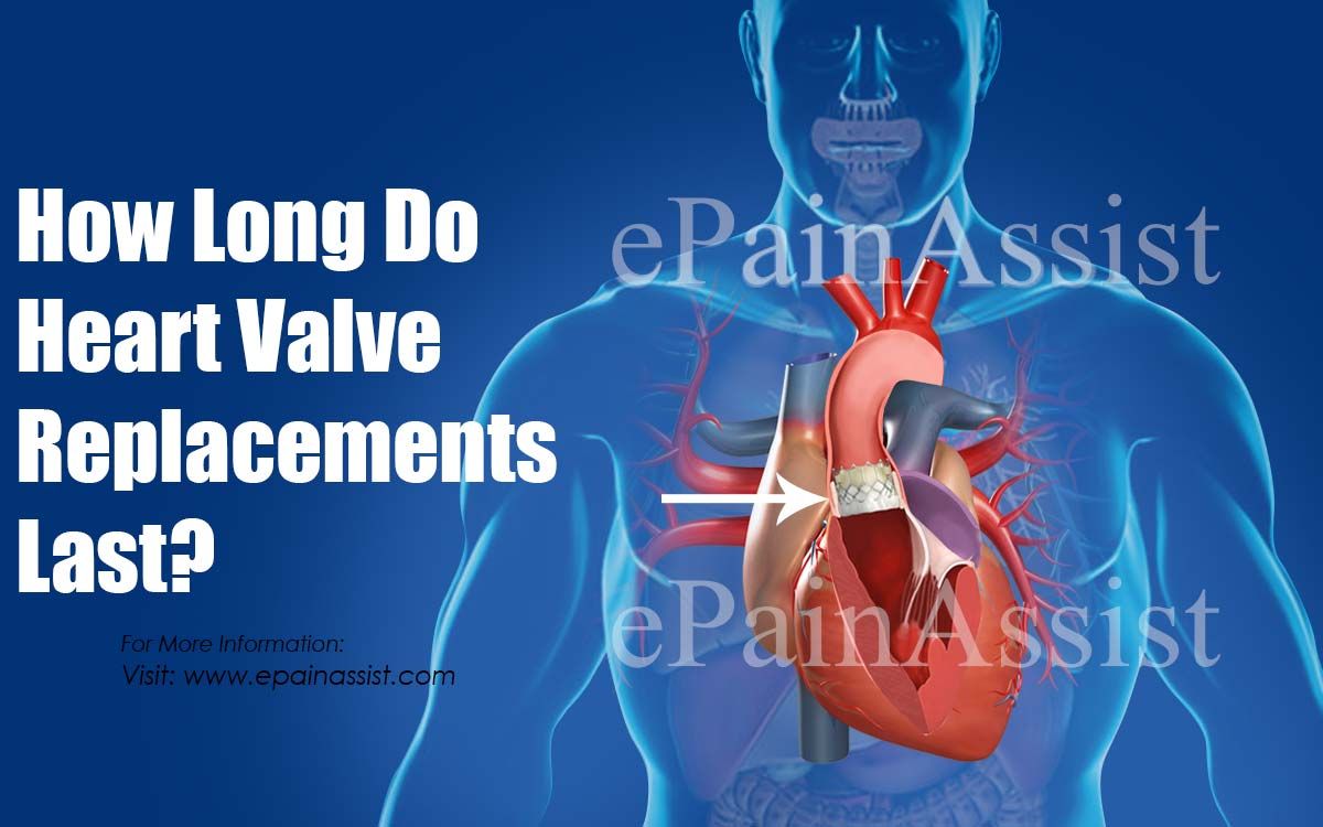 How Long Do Heart Valve Replacements Last?