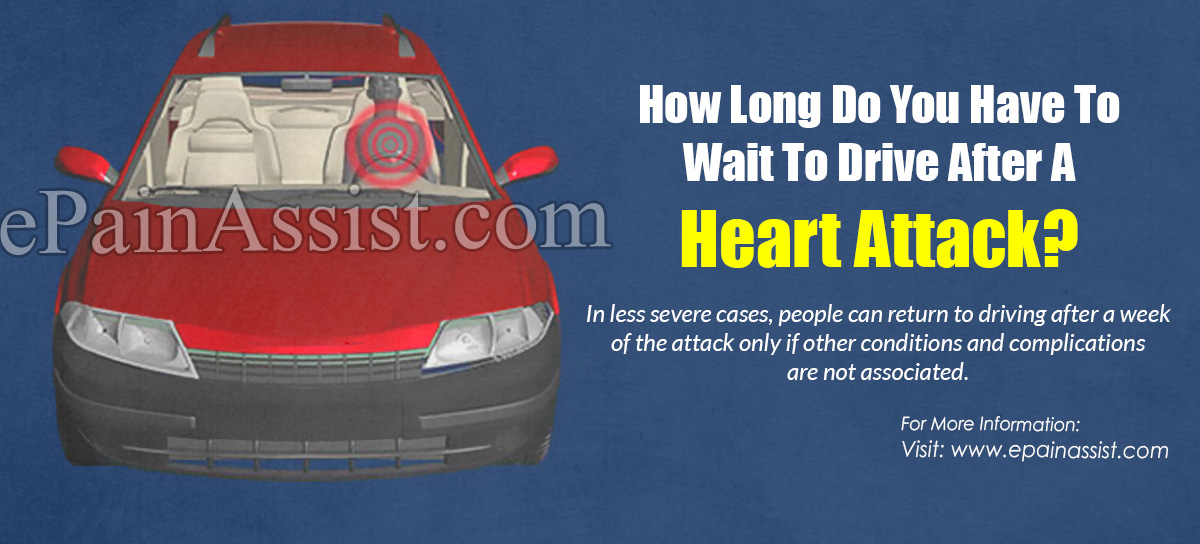 How Long Do You Have To Wait To Drive After A Heart Attack?