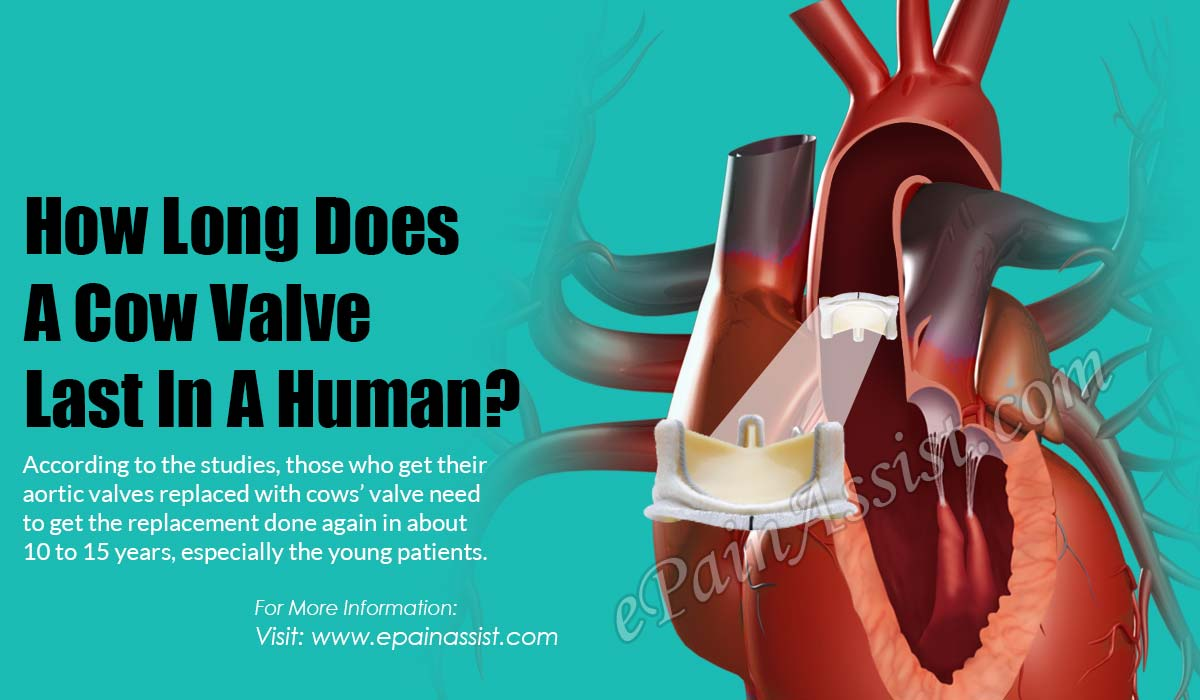 How Long Does A Cow Valve Last In A Human?