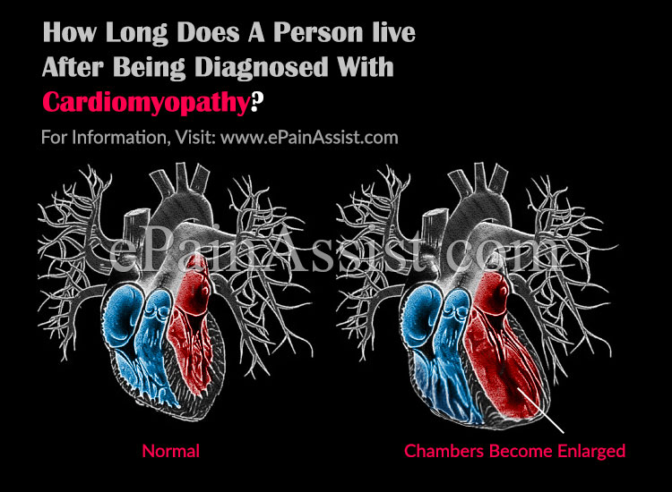 How Long Does A Person Alive After Being Diagnosed With Cardiomyopathy?